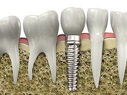 Dental Implant in Tenafly NJ